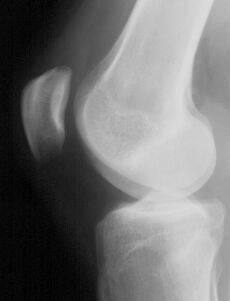 Сайт практического рентгенолога заболевания коленного сустава акулий жир мазь для суставов отзывы