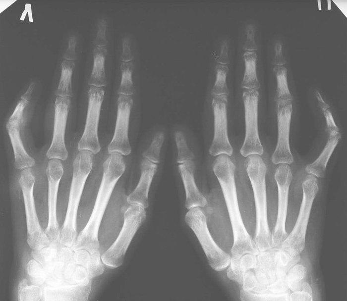 Рентгенография Количественная фото