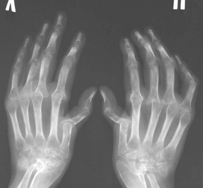 Если на рентгене тб сустава виден остеопороз питание после замены сустава