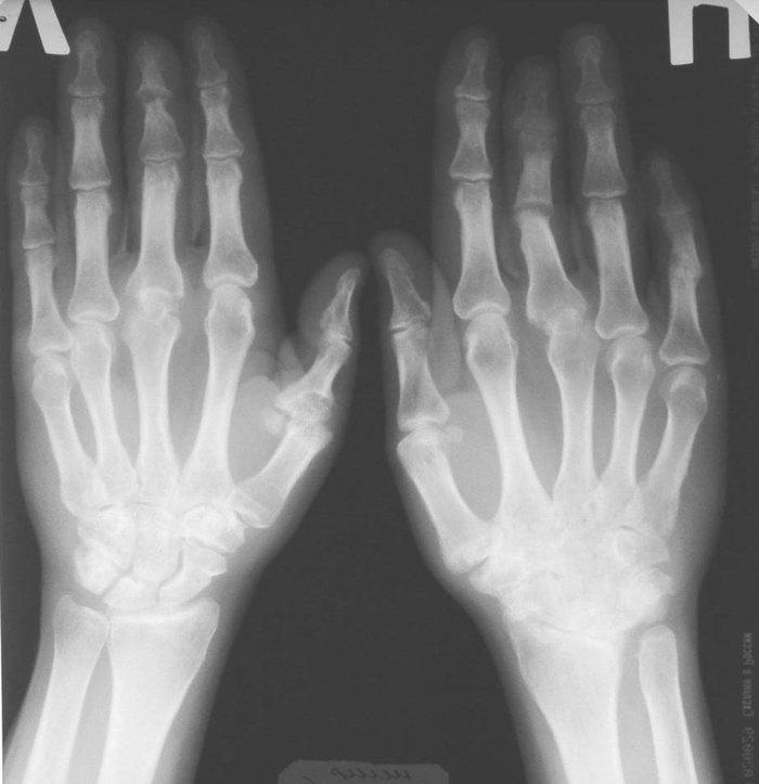 Рентген лучезапястного сустава-норма растворение кальциевых солей в суставах
