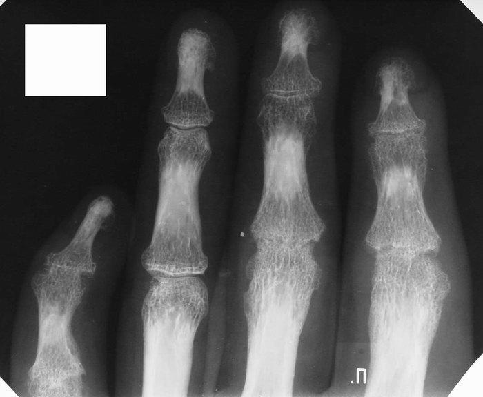 Изменения суставов при патологиях-рентген лечение травами артроза коленного сустава