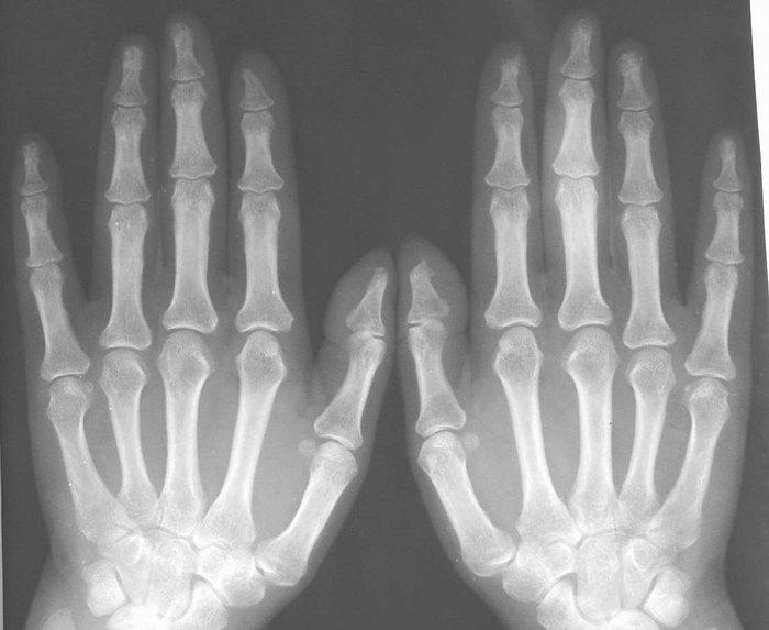 Подвывих первого пястно-фалангового сустава на рентгенограмма очищения суставов рисом