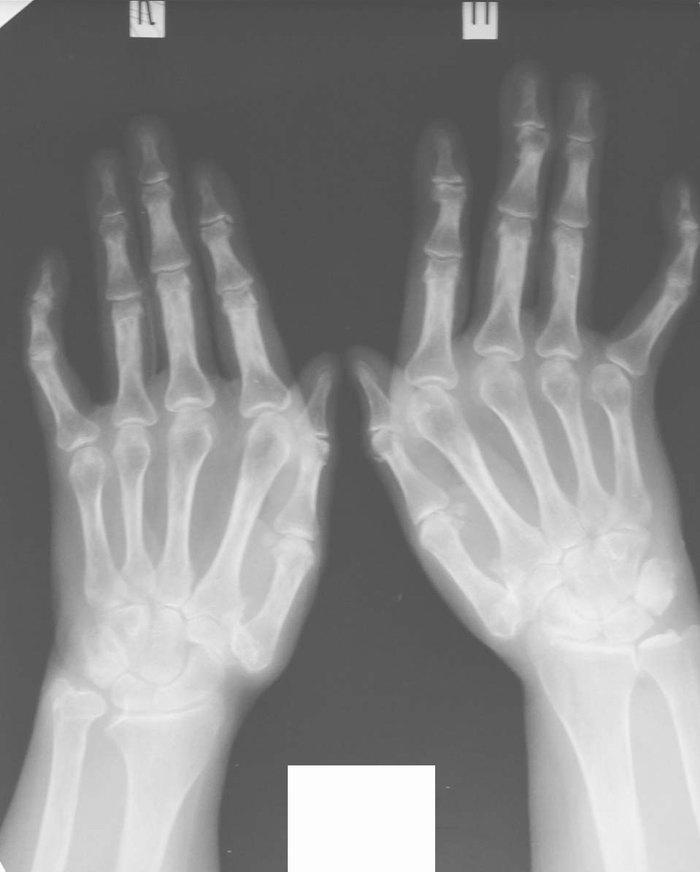 Артроз суставов кисти симптомы склеродермия кемерово замена суставов