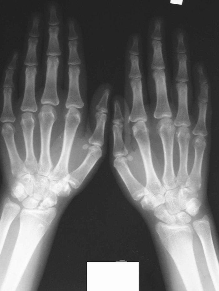 Рентгенологическая картина суставов стоп разрыв или растяжение связок голеностопного сустава