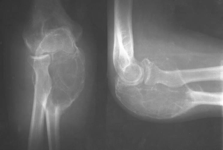 Рентген признаки заболеваний костей и суставов лечение синовита коленных суставов
