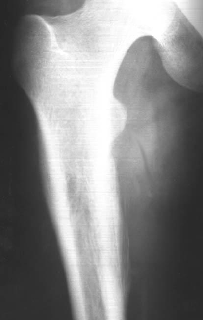Периостит берцовой кости симптомы