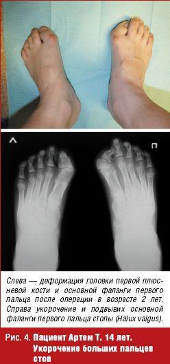 Болит если нажать на ногу