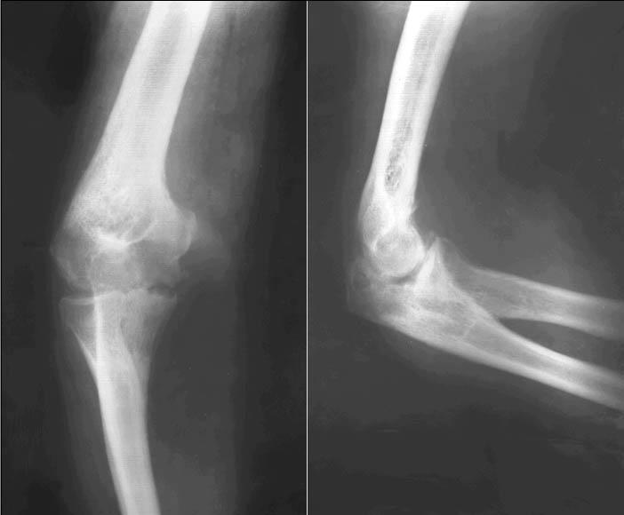 Анатомическим субстратом рентгеновской суставной щели является лечение коленного сустава чесноком