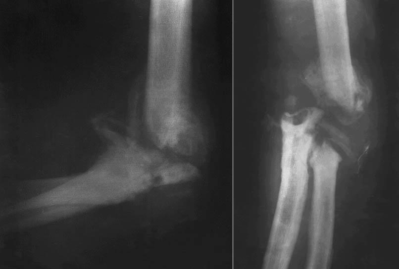 Что означает суставная щель сужается при остеомиелите локтевого сустава треск костей и суставов