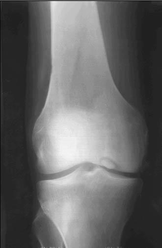 Изображение на рисунке нормы расстояния суставных щелей в колене народна медицина суставит