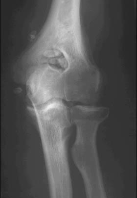 Увеличение рентгеновской суставной щели гигрома плечевого сустава лечение