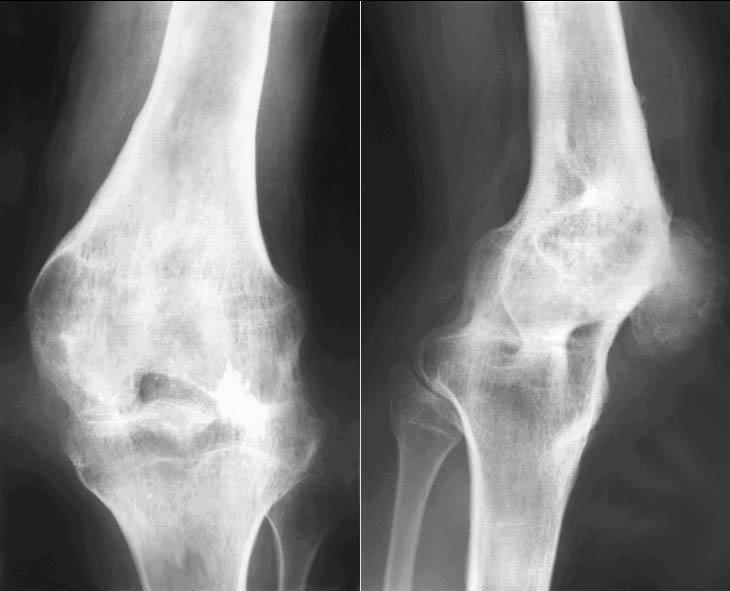 Анкилоз тазобедренного сустава рентген ультразвуковое исследование височно-нижнечелюстного сустава