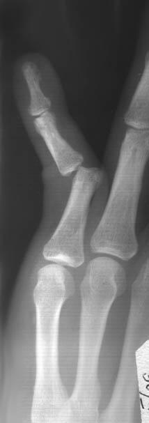 Изображение на рисунке нормы расстояния суставных щелей в колене хондроз суставов лечение
