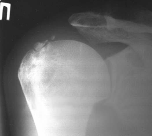 вправленный вывих плечевого сустава мкб 10