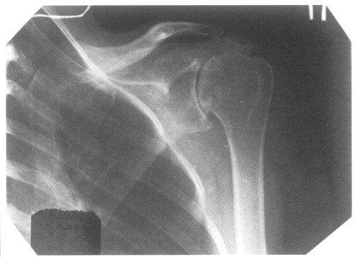 Рентгенологическая диагностика изменений плечевого сустава : Сайт ...